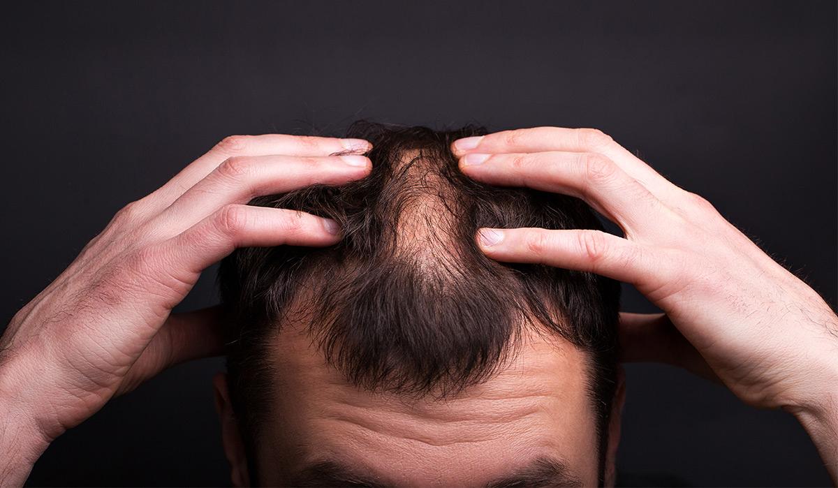 Motivele principale ale căderii părului